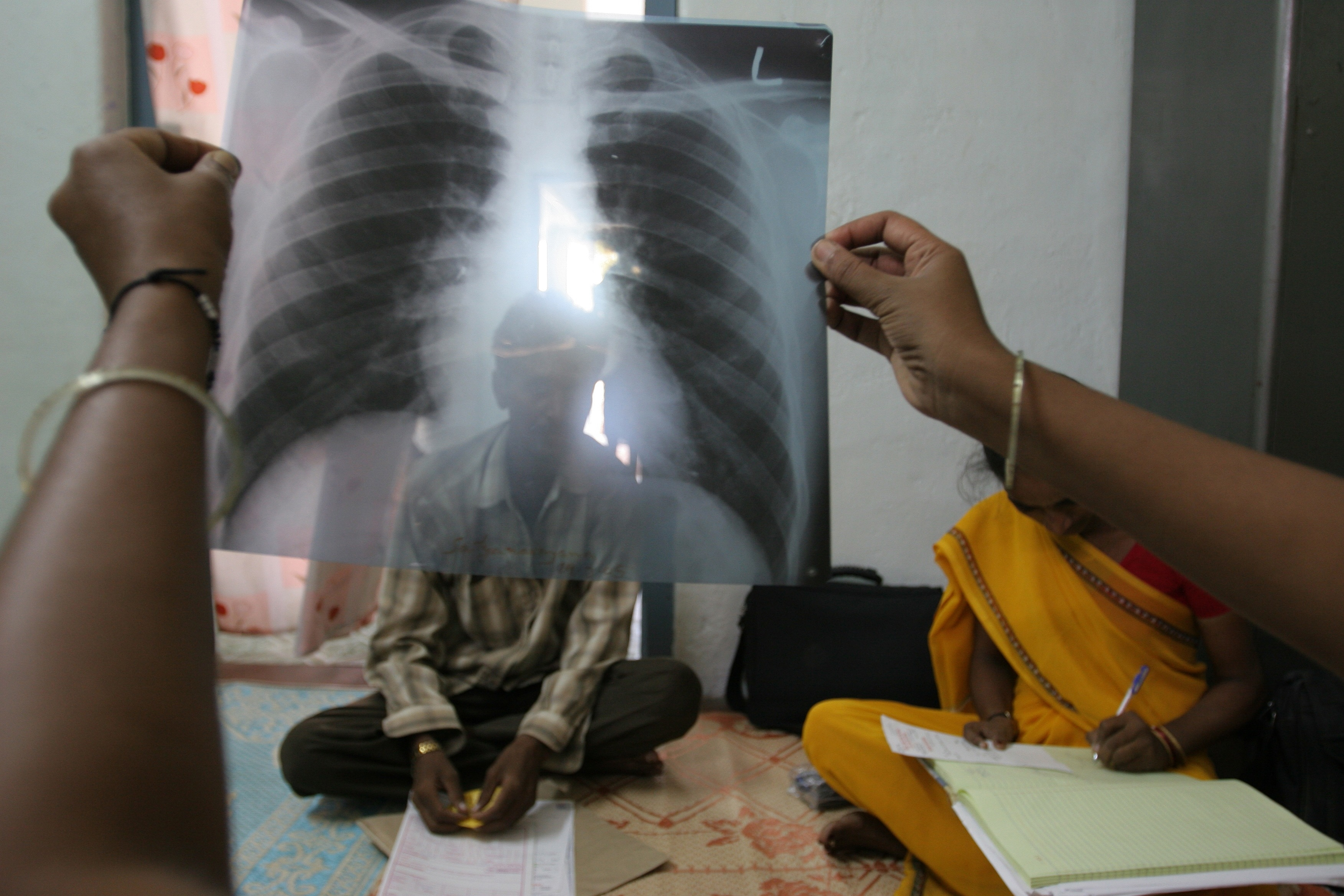 © Flickr Creative commons - Gates Foundation World TB Day