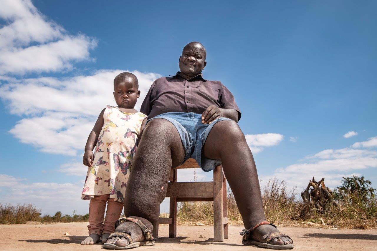 Laitchani Levson developed LF in 2001. His granddaughter Elfrieda is pictured next to his swollen leg - Photo credit: Simon Townsley/Daily Telegraph